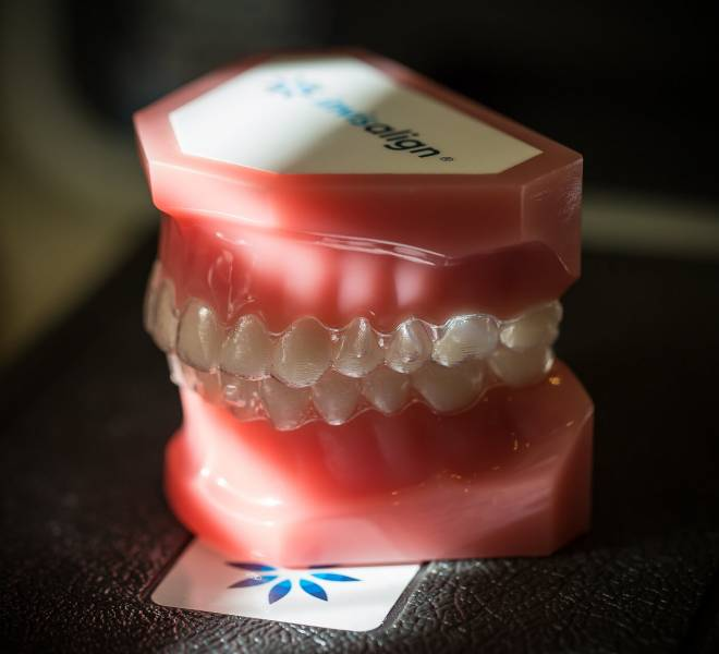 Treatment-Invisalign-8-Oltjen-Orthodontics-Olathe-KS-thegem-gallery-justified  - Braces and Invisalign in Kansas City, Overland Park, Olathe, and Paola, Kansas - Oltjen Orthodontics