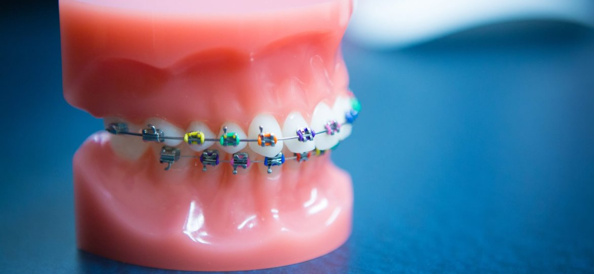 Oltjen Orthodontics - Kansas City Olathe Overland Park Orthodontist-26