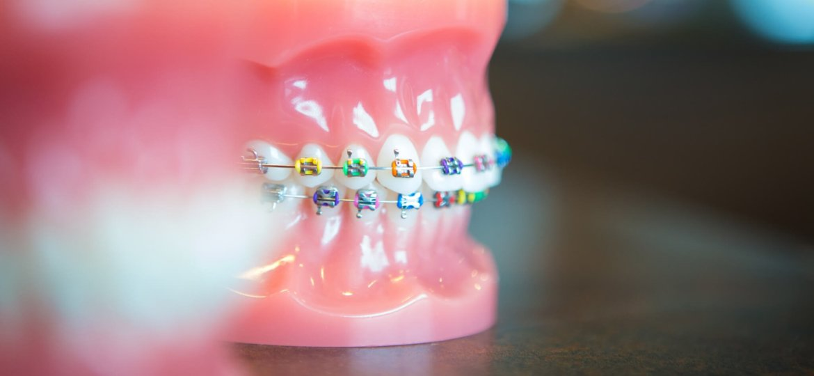 Oltjen Orthodontics - Kansas City Olathe Overland Park Orthodontist-29