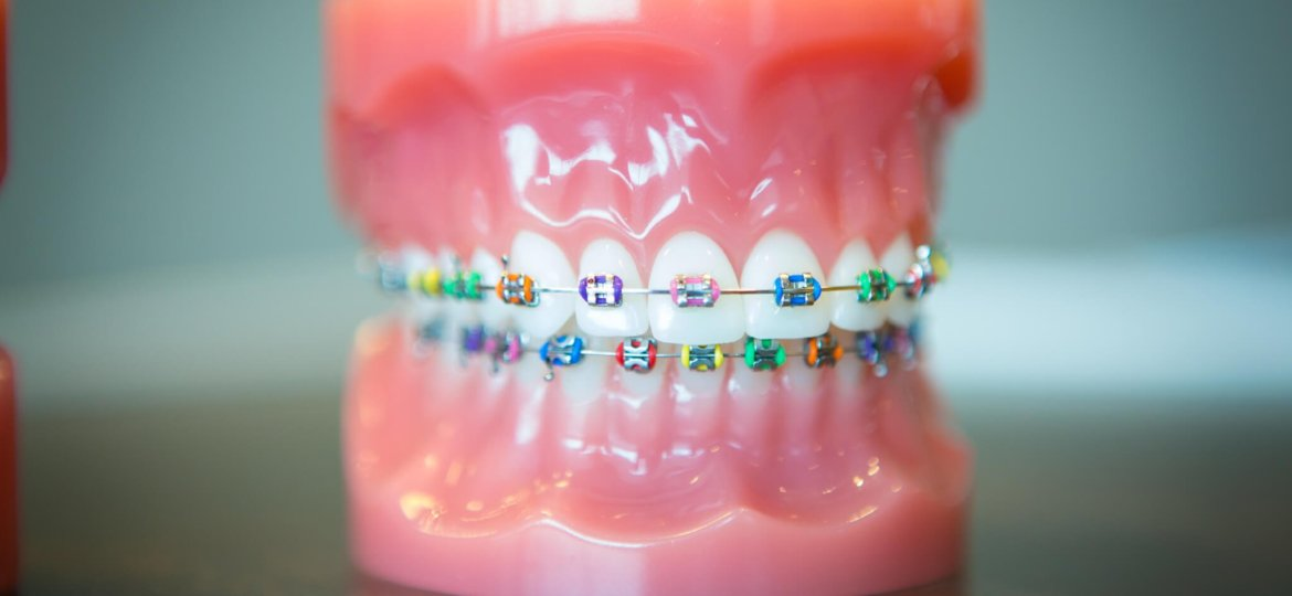 Oltjen Orthodontics - Kansas City Olathe Overland Park Orthodontist-33