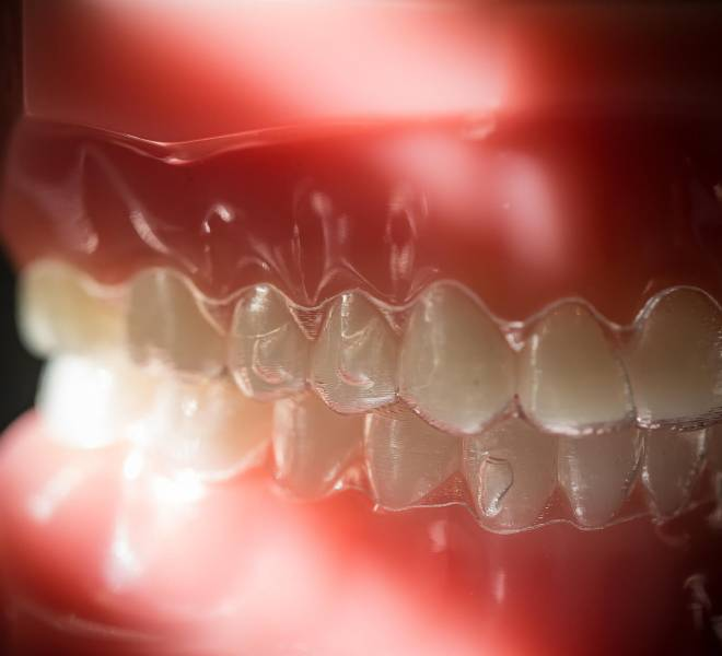 Treatment-Invisalign-9-Oltjen-Orthodontics-Olathe-KS-thegem-gallery-justified  - Braces and Invisalign in Kansas City, Overland Park, Olathe, and Paola, Kansas - Oltjen Orthodontics