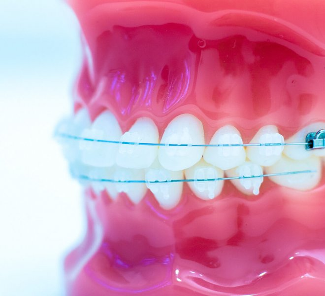 Oltjen-Orthodontics-Kansas-City-Olathe-Overland-Park-Orthodontist-1-10-thegem-gallery-justified  - Braces and Invisalign in Kansas City, Overland Park, Olathe, and Paola, Kansas - Oltjen Orthodontics