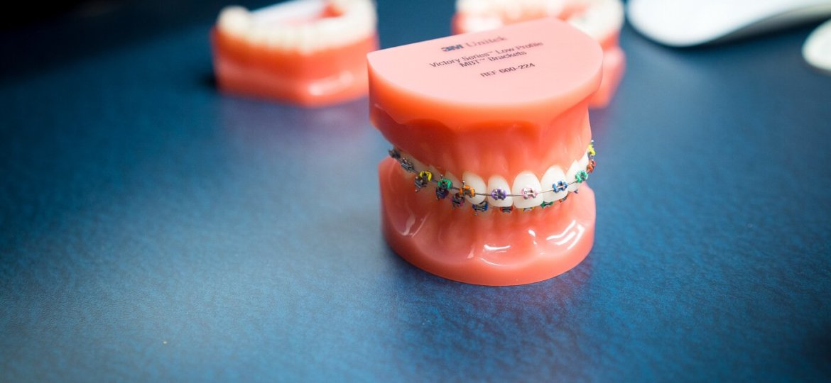 Oltjen-Orthodontics-Kansas-City-Olathe-Overland-Park-Orthodontist-1--9