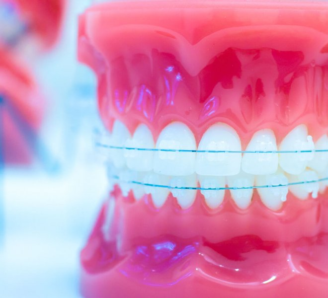 Oltjen-Orthodontics-Kansas-City-Olathe-Overland-Park-Orthodontist-3-thegem-gallery-justified  - Braces and Invisalign in Kansas City, Overland Park, Olathe, and Paola, Kansas - Oltjen Orthodontics