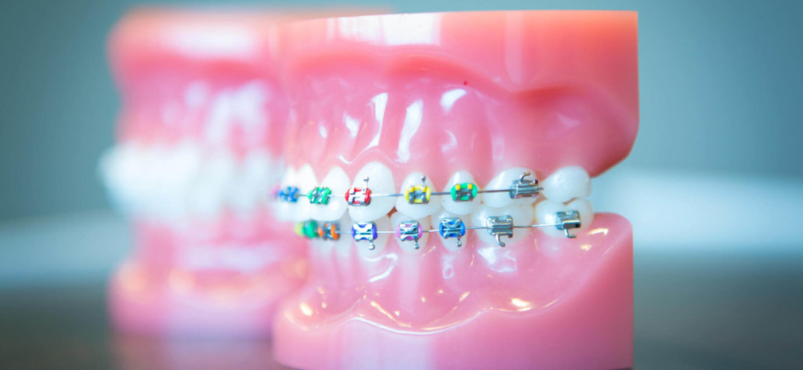 Oltjen-Orthodontics-Kansas-City-Olathe-Overland-Park-Orthodontist-35-2