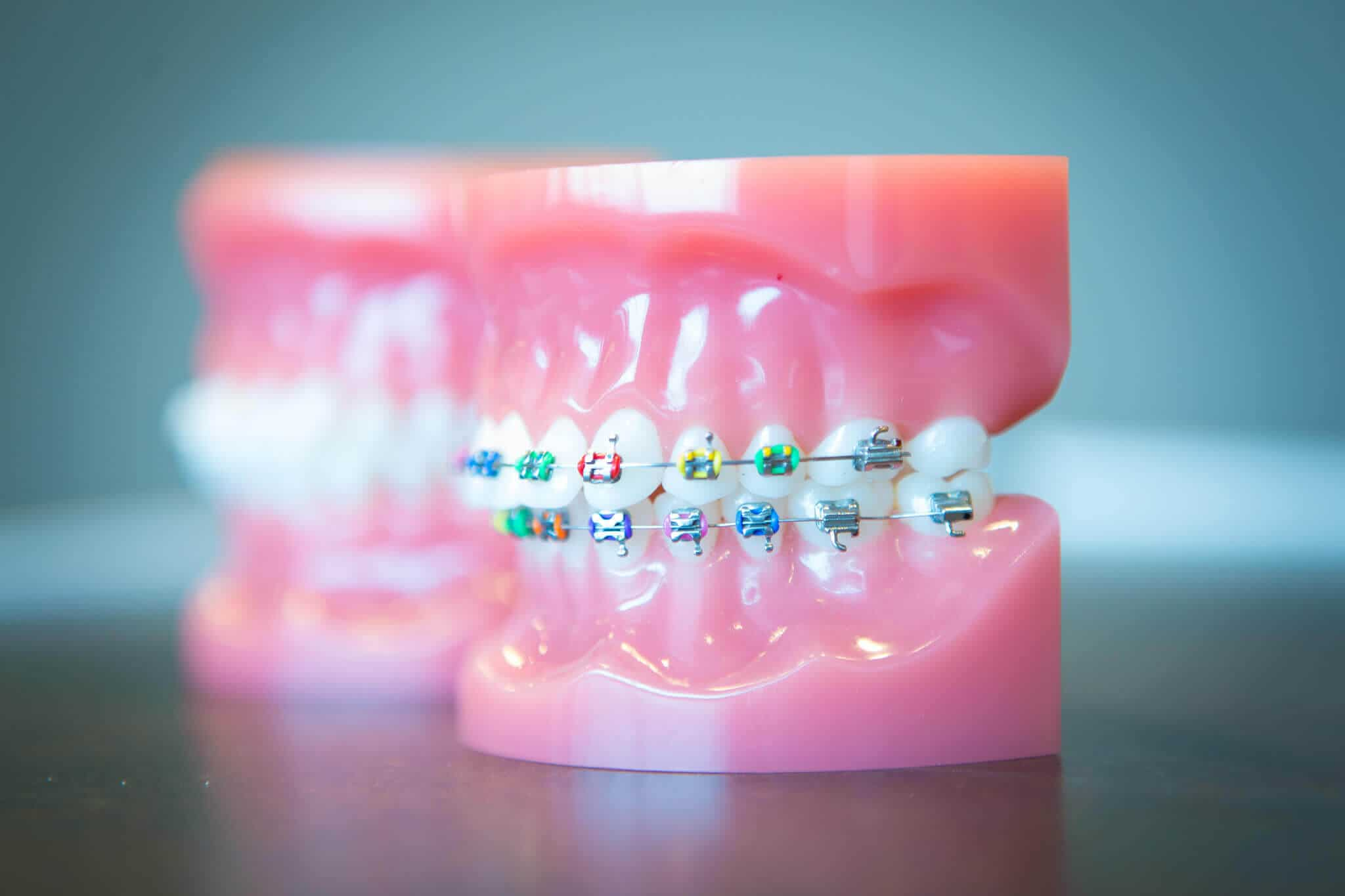 orthodontist Dr larson is an expert in orthodontics in moore, ok she provides braces and invisalign services in moore, shawnee, oklahoma city, and norman.