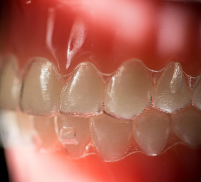 Treatment-Invisalign-11-Oltjen-Orthodontics-Olathe-KS-thegem-gallery-justified  - Braces and Invisalign in Kansas City, Overland Park, Olathe, and Paola, Kansas - Oltjen Orthodontics