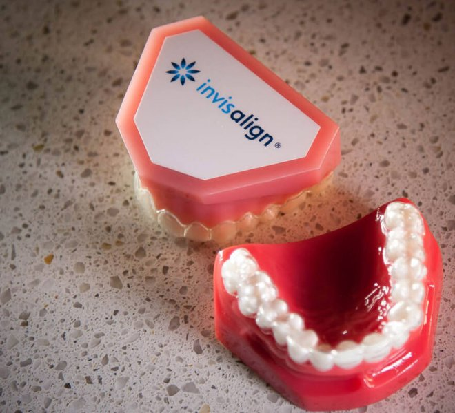 Treatment-Invisalign-12-Oltjen-Orthodontics-Olathe-KS-thegem-gallery-justified  - Braces and Invisalign in Kansas City, Overland Park, Olathe, and Paola, Kansas - Oltjen Orthodontics
